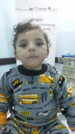 yousef - malnourished
